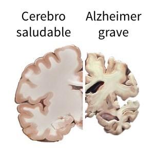 brain_slices_alzheimers_spanish_version_2-June_30_2020_.jpg